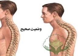 کیفوز و ماساژ درمانی